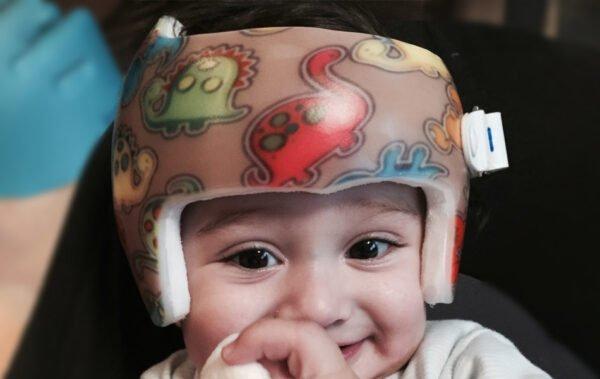 Syndrome du bébé avec la tête plate, la plagiocéphalie